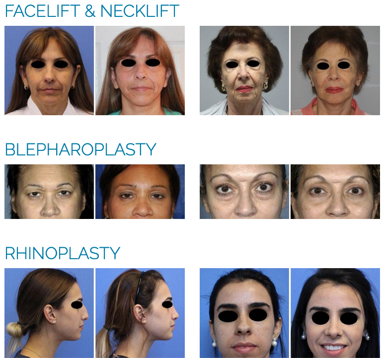 bad plastic surgery before and after photos